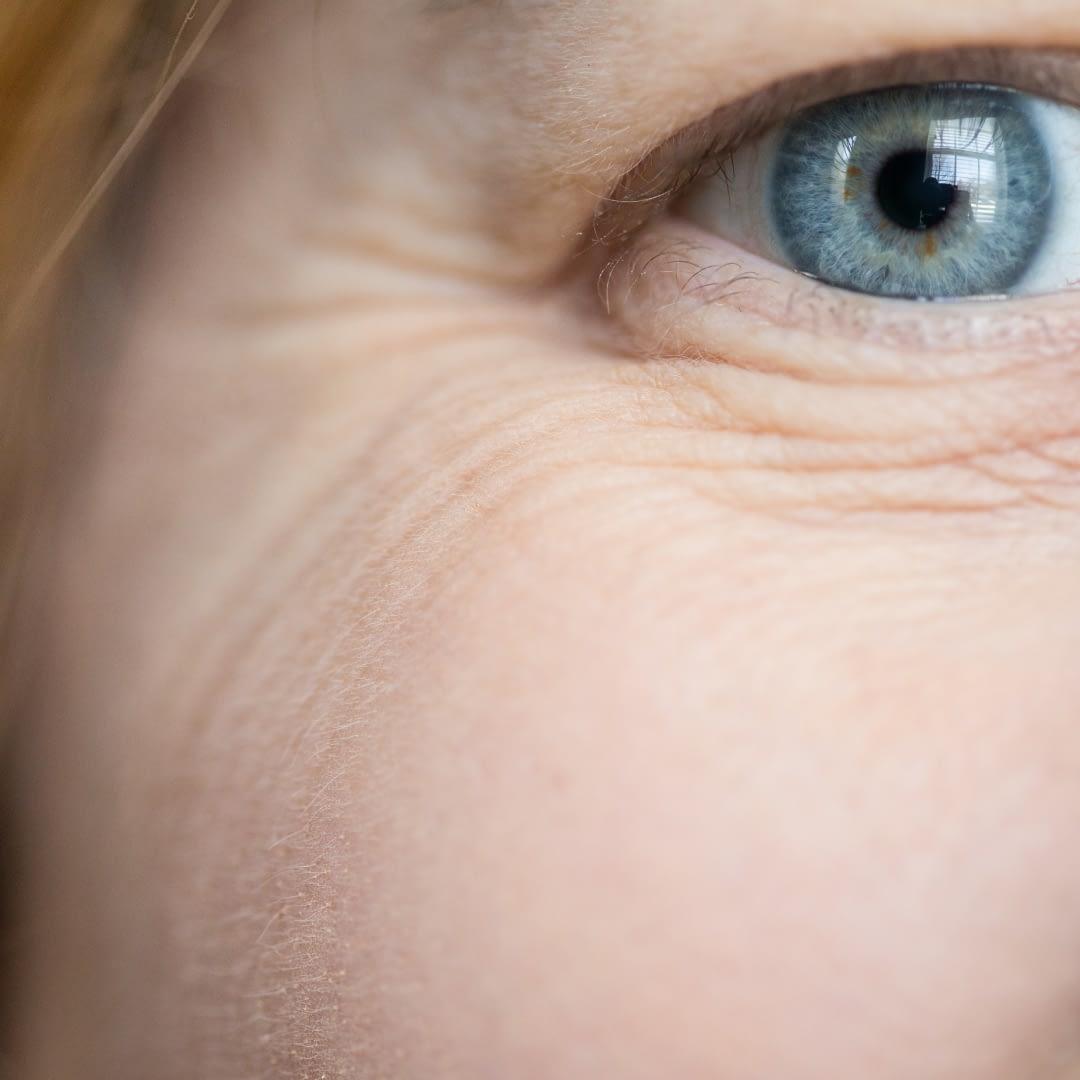 Nowoczesne metody na usuwanie zmarszczek pod oczami